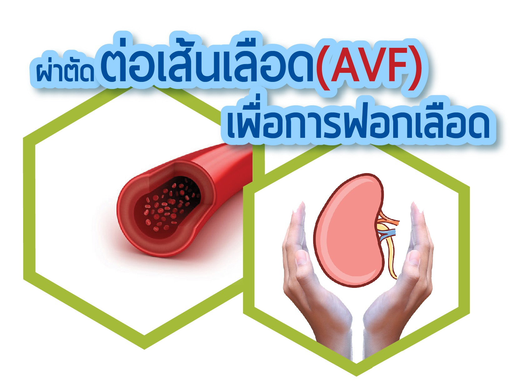 ผ่าตัดต่อเส้นเลือด เพื่อการฟอกเลือด (AVF)