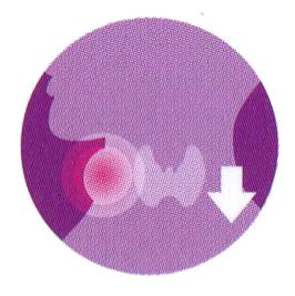 โรคไทรอยด์ชนิดอ้วน ภาวะพร่องฮอร์โมนไทรอยด์ (Hypothyroid)